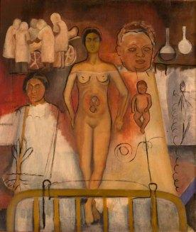Frida y la Cesárea